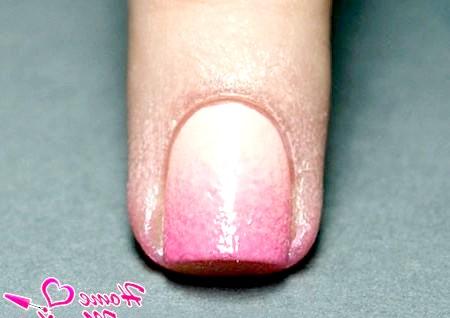 Фото - Забруднений шкіра навколо нігтя