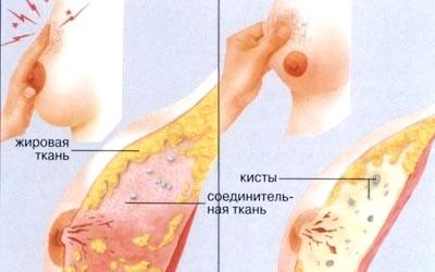 Фото - Кіста в грудях