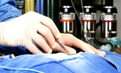 Фото - Операція на грудях
