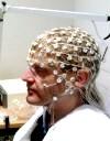 Фото - ЕЕГ головного мозку